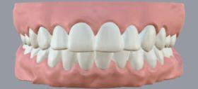 Выпущено ПО для выравнивания зубов при помощи 3D-печати