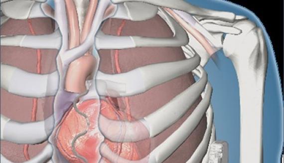 Имплантирован первый дефибриллятор Medtronic, у которого провода находятся за пределами сердца и вен